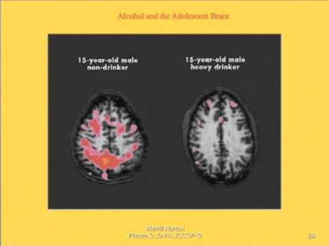 Alcohol and Addiction- How it affects the Brain