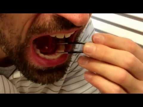 Removing my own salivary gland stone