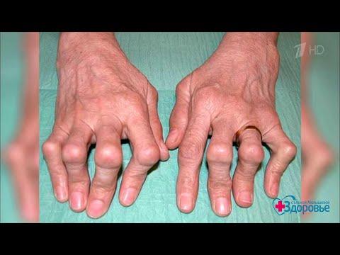 Ревматоидный артрит. Здоровье. 20.09.2020