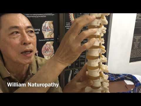 Kenapa bisa kena HNP / saraf terjepit di L4 -L5  / sindrom piriformis