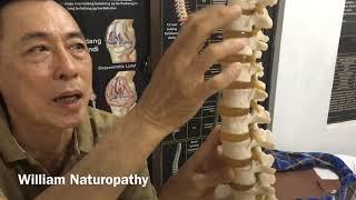 Kenapa bisa kena HNP / saraf terjepit di L4 -L5  / sindrom piriformis.