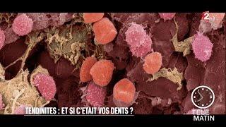 Santé - Tendinites : et si c'était vos dents ? - 2016/02/24