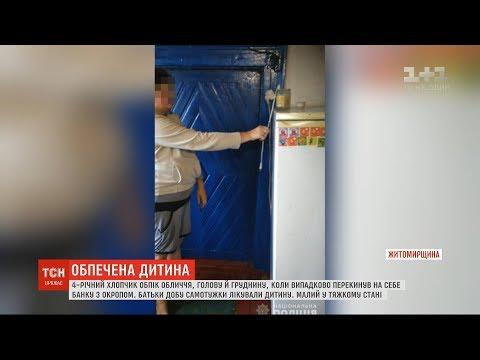 4-річний хлопчик облився окропом на Житомирщині