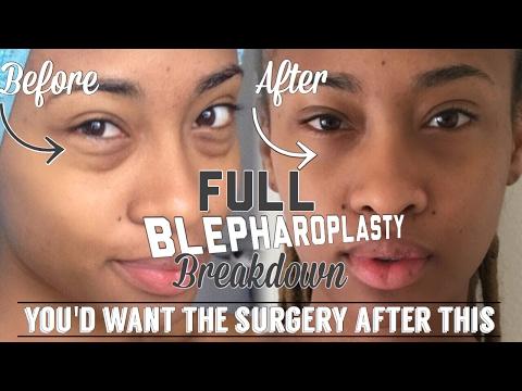 My Full Blepharoplasty Breakdown