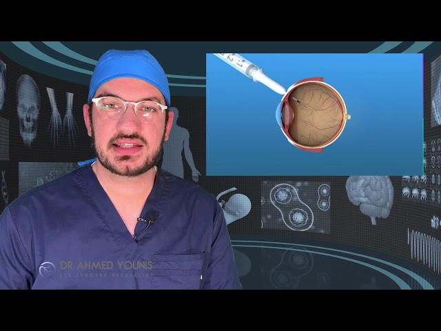 السكري والعين ج٤ | مع د. أحمد يونس