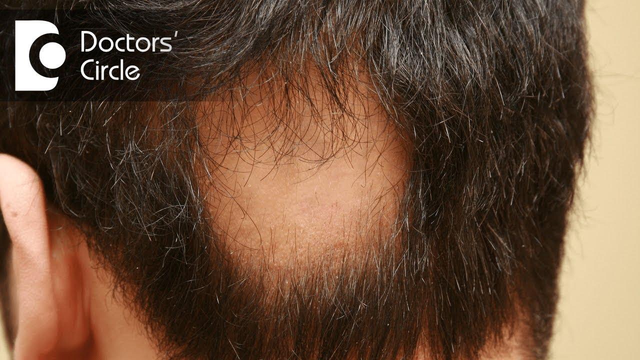Treatments For Alopecia Areata Dr Shuba Dharmana Youtube