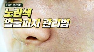 얼굴 피지 관리법, 꼭 약을 먹어야만 줄일수있나요?
