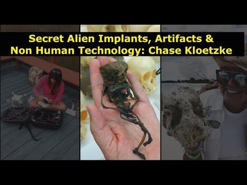 Secret Alien Implants, ET Artifacts & Non Human Technology, Chase Kloetzke