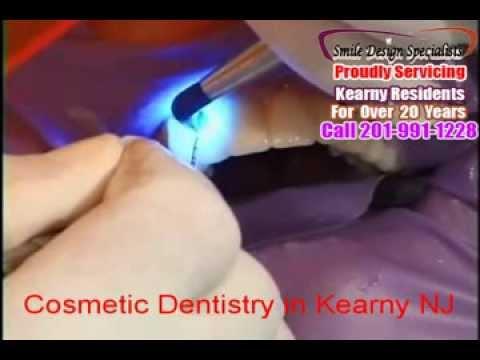 Cosmetic Dentistry in Kearny NJ-Smile Design Specialist-Call 201-991-1228