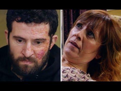 Emmerdale spoilers: Ross Barton loses control in HEARTBREAKING scenes with Rhona Goskirk