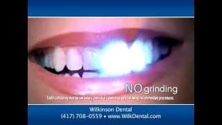Lumineers at Wilkinson Dental, Springfield Missouri Thumbnail