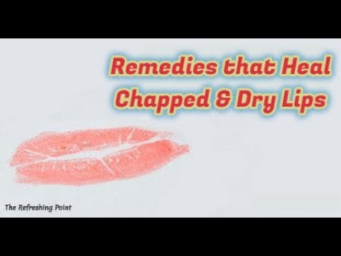 d35c689e5cd Heal Dry Chapped Lips Naturally - Easy Ways to Cure Chapped Lips -Best Natural  Remedies for Dry Lips. The Refreshing Point