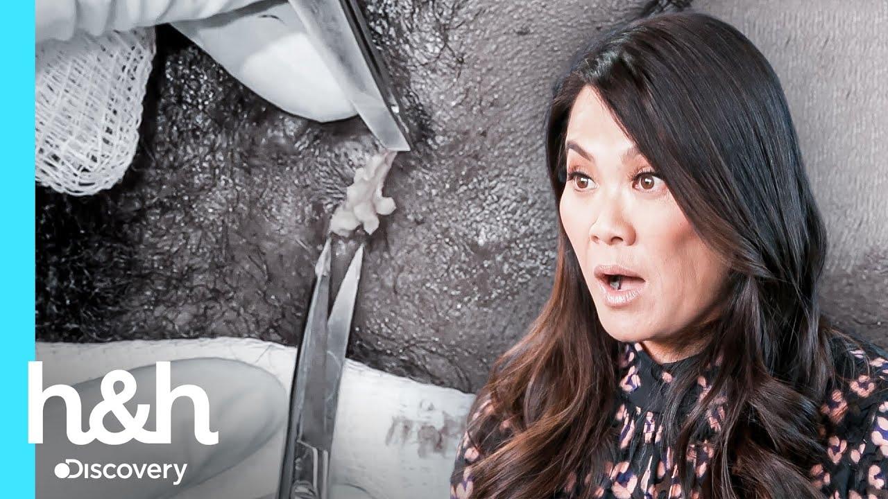 Tiene esteatocistomas por todo su cuerpo | Dra. Sandra Lee: Especialista en piel | Discovery H&H