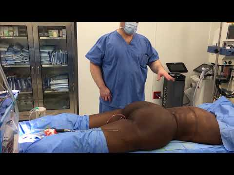 Liposuction, groin incision thigh lift, inferior buttock lift, bra line back lift
