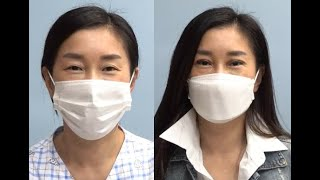 쌍꺼풀이 있는 40대 여성의 쌍꺼풀수술 사례