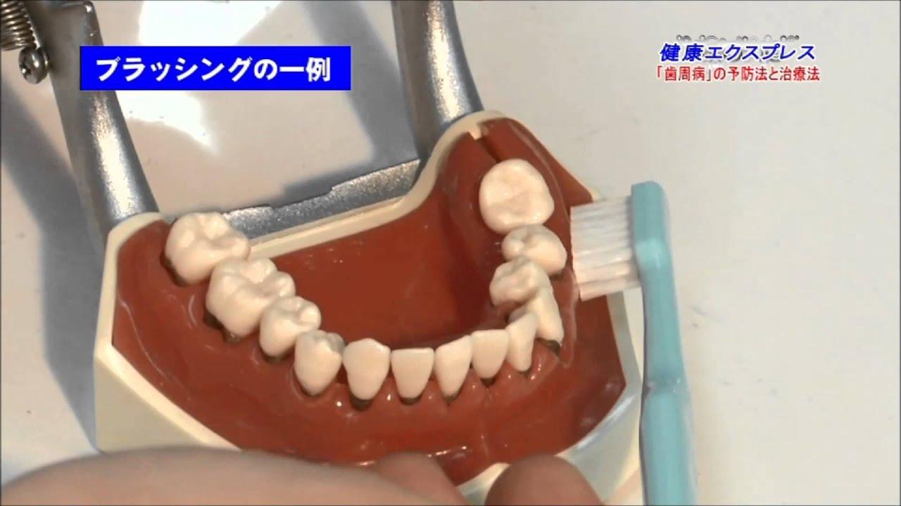 麻酔 食事 歯医者 後
