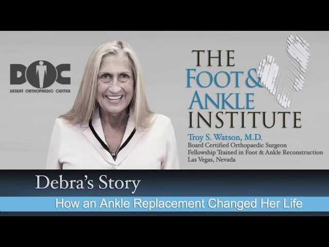 Debra's Story