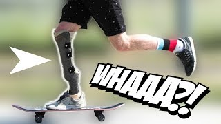 MIND BLOWING Prosthetic Leg Skater
