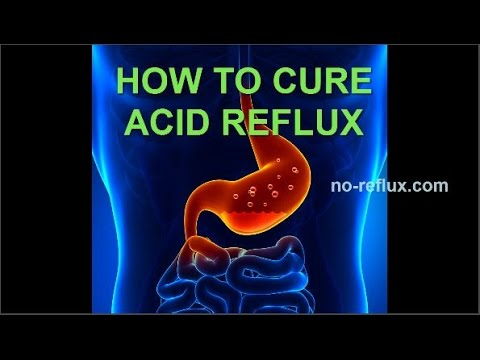 Acid Reflux Treatment - NO MORE HEARTBURN!
