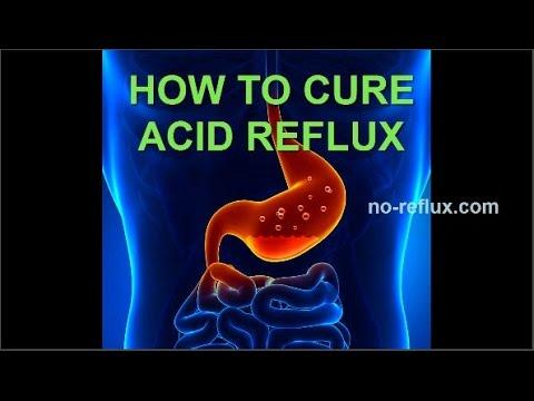 Acid Reflux Treatment - NO MORE HEARTBURN!
