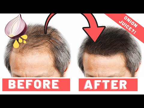 Onion Juice For Hair Growth - Does It Work 2019?