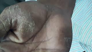 Tinea Manuum after 2nd treat see old skin peeling