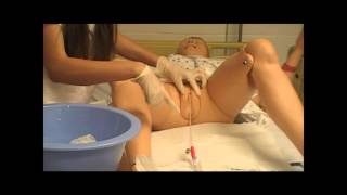 Repeat youtube video How to Insert a Foley Catheter in a Woman