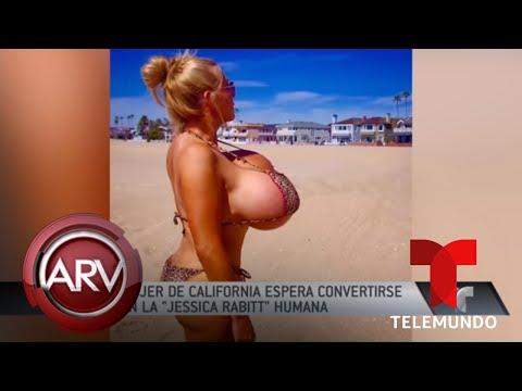 Mujer con pechos gigantes causa revuelo | Al Rojo Vivo | Telemundo