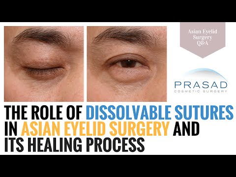 Asian Eyelid Surgery - the Role of Dissolvable Sutures in Surgery, and in Healing