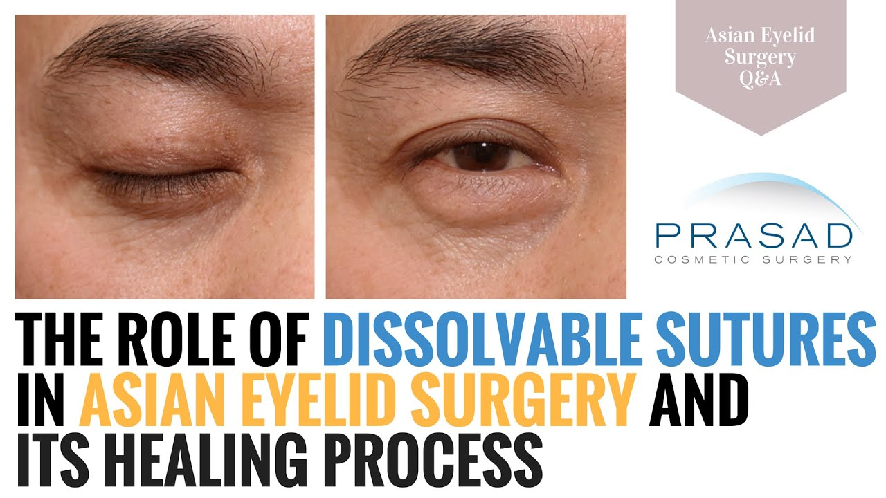 Asian Eyelid Surgery - the Role of Dissolvable Sutures in Surgery
