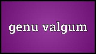 Genu valgum Meaning