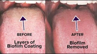 Tongue Rejuvenation, The Total Cure for Bad Breath & Halitosis, 703-533-0927