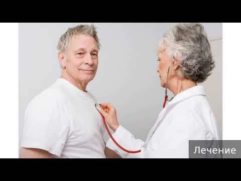 Болезнь Паркинсона. Как лечить болезнь Паркинсона.
