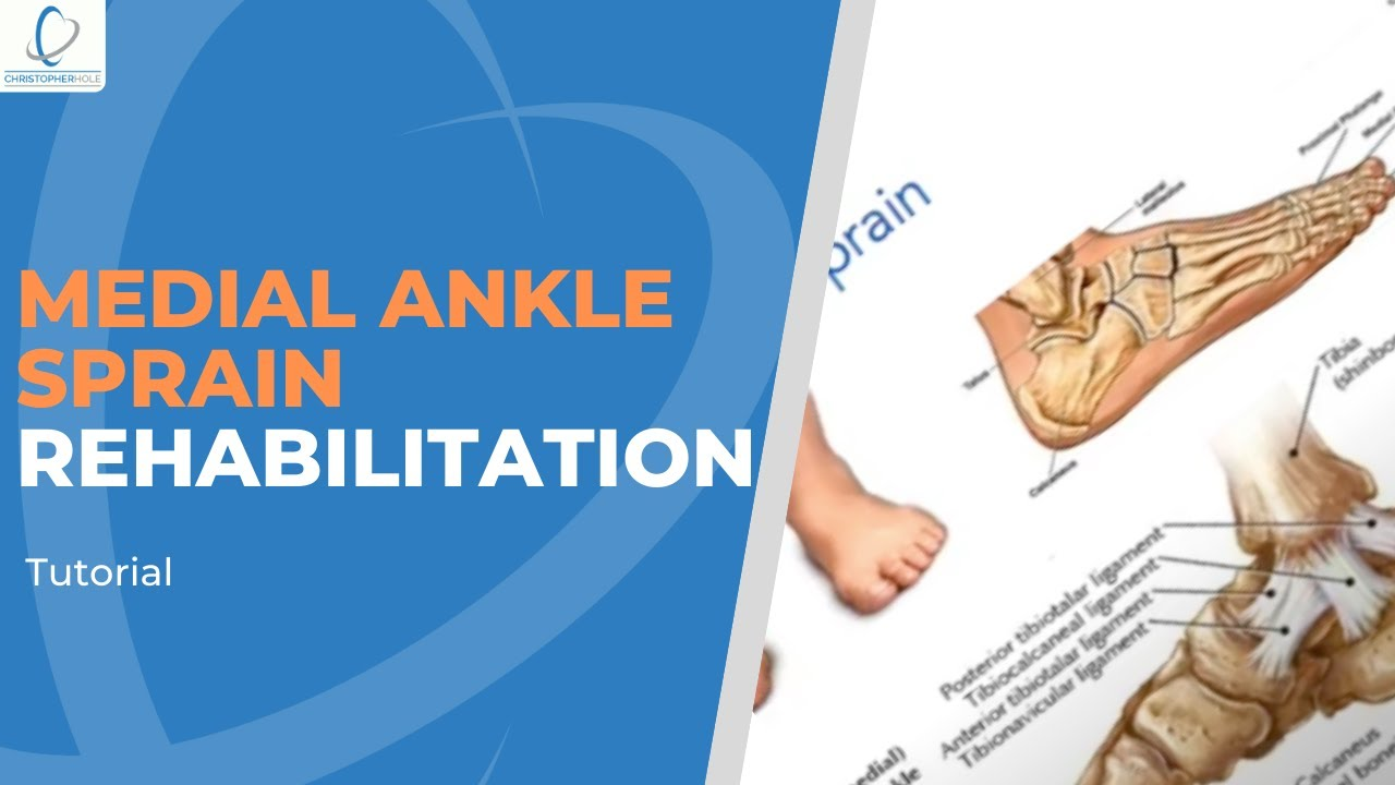 how to rehab a medial ankle sprain youtube