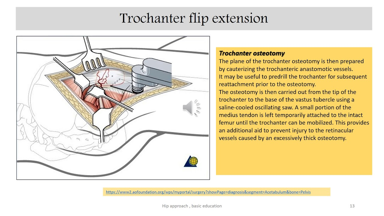 Surgical Approaches to the Hip and Acetabulum-Trochanteric  Flip  Osteotomy