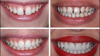 Kaplama diş zararlı mı? Diş rengi kendi dişimin rengine uyar mı?