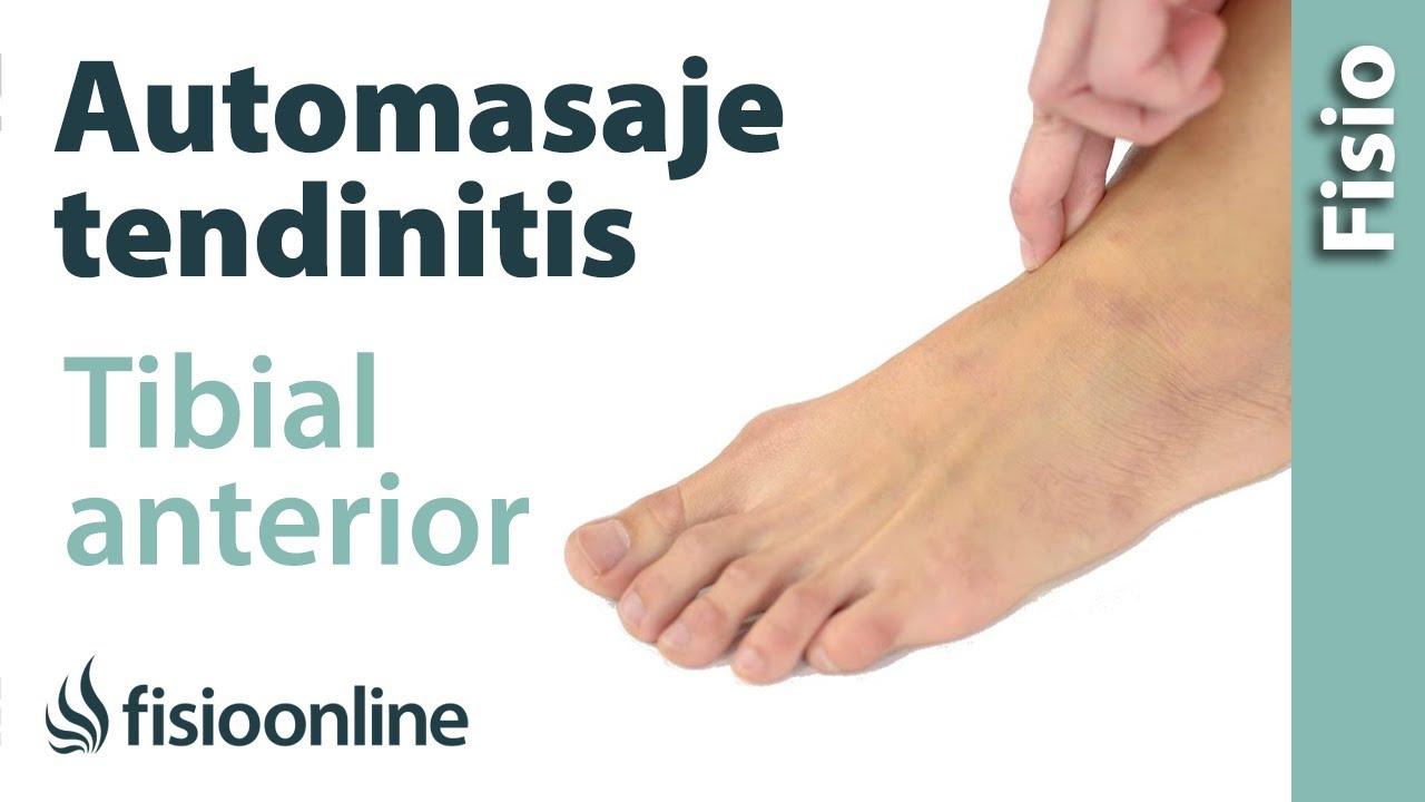 Tendinitis del tibial anterior - Automasaje para su tratamiento ...