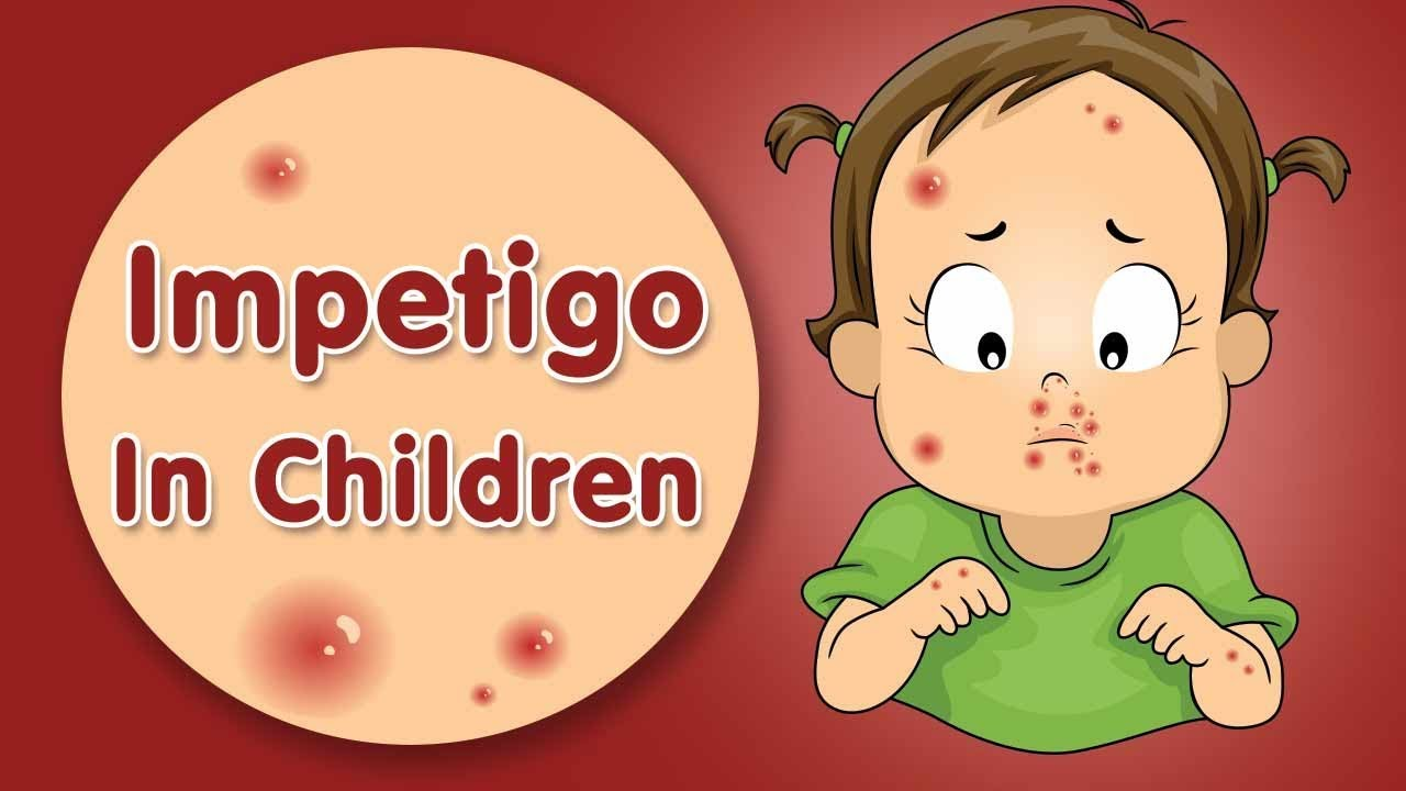 Impetigo in Kids - Types, Causes, Signs & Home Remedies