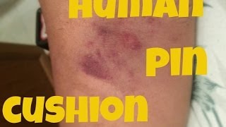 The Human Pin Cushion - Vlogtober 21, 2013