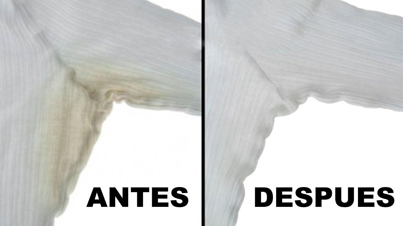 Quitar manchas de desodorante de la ropa remove - Como sacar las manchas ...