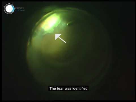 îndepărtarea operațiunilor varico video