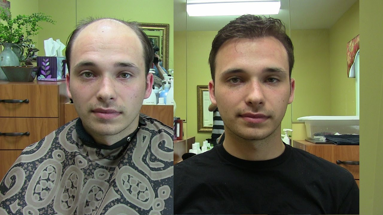Non surgical hair replacement toupee of today youtube pmusecretfo Choice Image