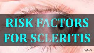 RISK FACTORS FOR SCLERITIS