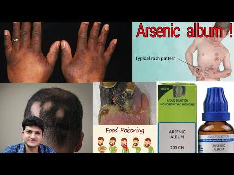 Homeopathic Medicine Arsenicum Album ! Uses ! Disease ! Symptom ! Doses ! experience !