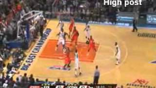 Syracuse 2-3 zone defense thumbnail