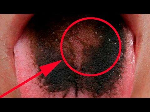 Как выглядит укус клеща фото. Что делать если укусил клещ