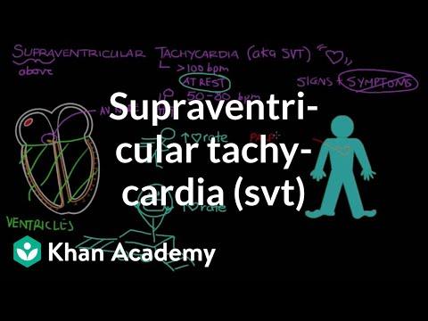 Supraventricular tachycardia (SVT)   Circulatory System and Disease   NCLEX-RN   Khan Academy