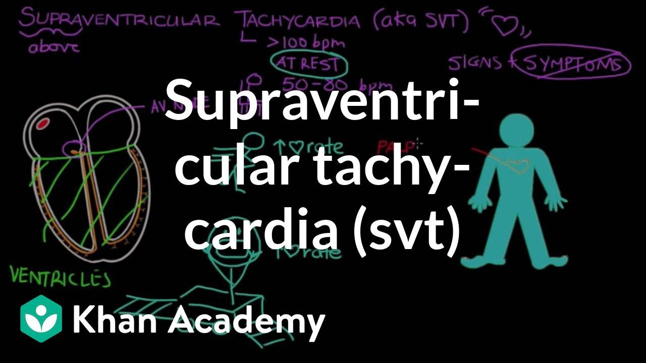 What Is Svt >> Supraventricular Tachycardia Svt Video Khan Academy