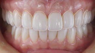 Лечение стираемости зубов. Реставрация зубов по силиконовому ключу. Front teeth restoration.(, 2016-07-22T16:31:36.000Z)