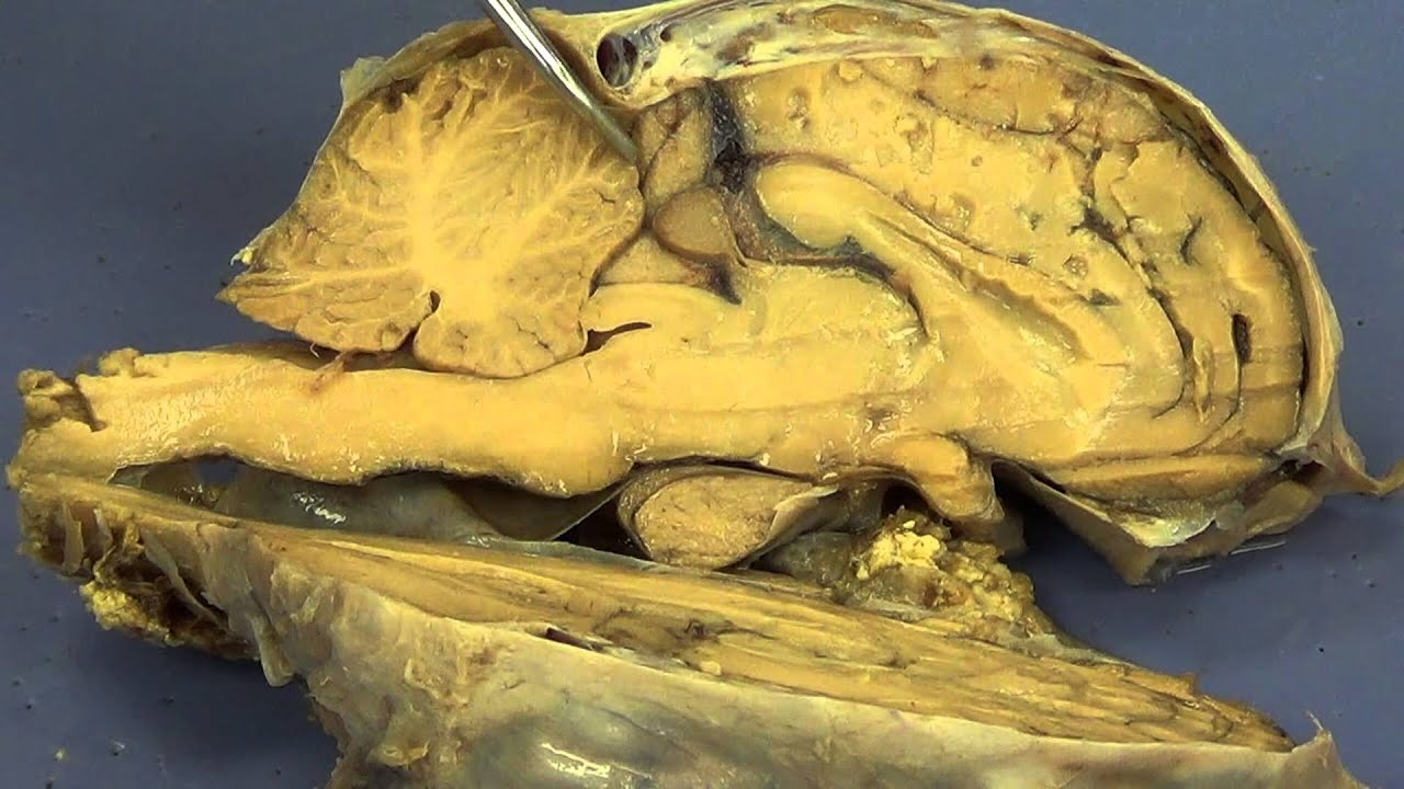 Sheep Brain Dissection - YouTube
